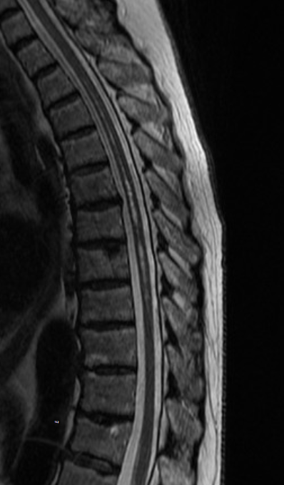 """MRI Case Study: """"Thoracic Cord Syrinx"""" or """"Some new vocab words ..."""